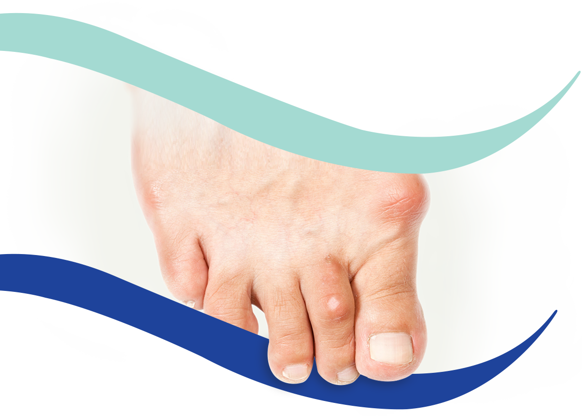 Bunion treatment - Podiatrist in Hove and Brighton - Hove Foot Clinic