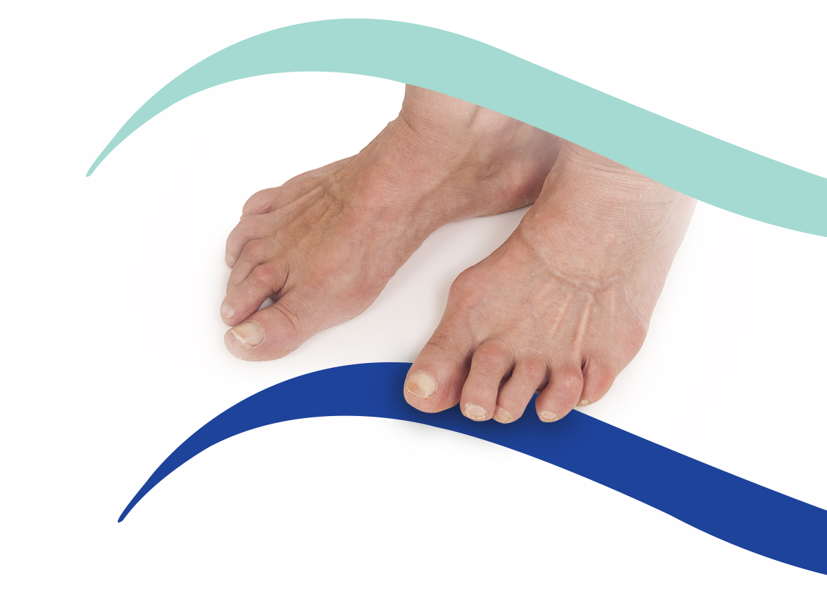 Rheumatoid Arthritis - Podiatrist in Hove and Brighton - Hove Foot Clinic