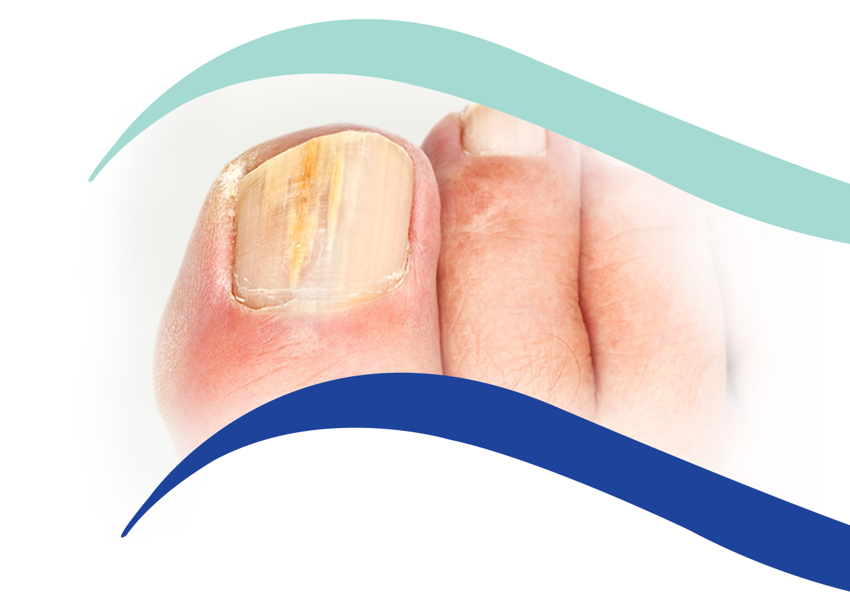 Fungal nail treatment - Podiatrist in Hove and Brighton - Hove Foot Clinic